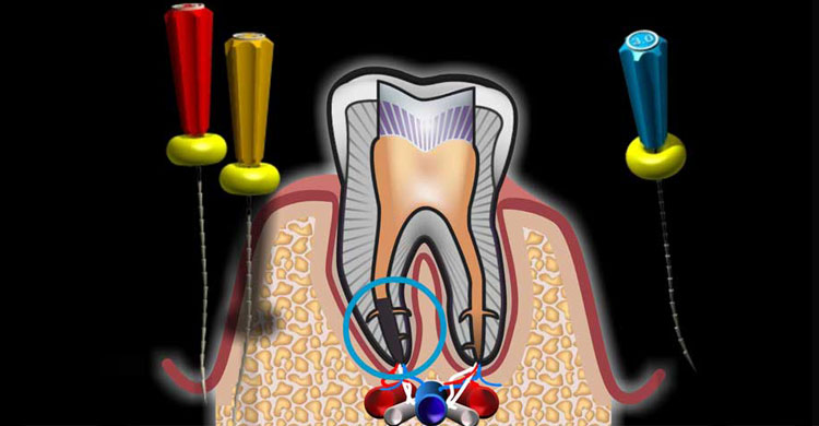 root canal treatment in ramanathapuram
